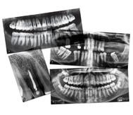 Gebit, röntgenfoto's van de tandarts